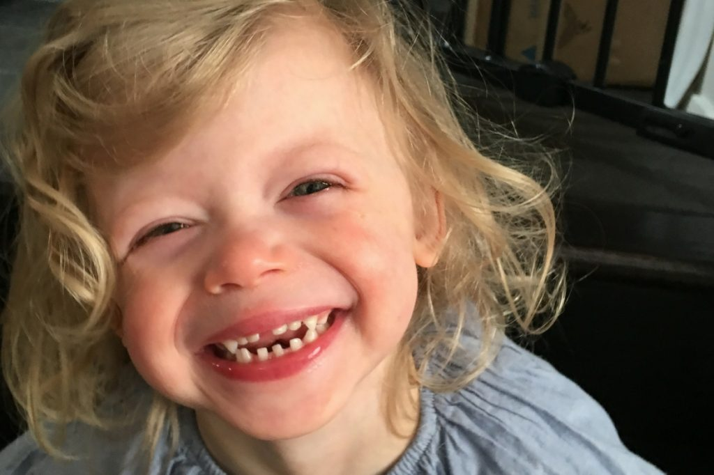 williamssyndrome.ca // Alma grin